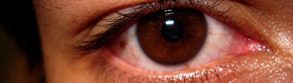 Siatkówka oka - choroby